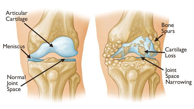 What is Arthritis in the knee?